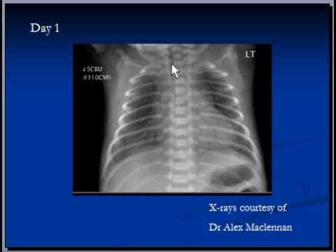 Chest x-ray interpretation, Respiratory distress syndrome