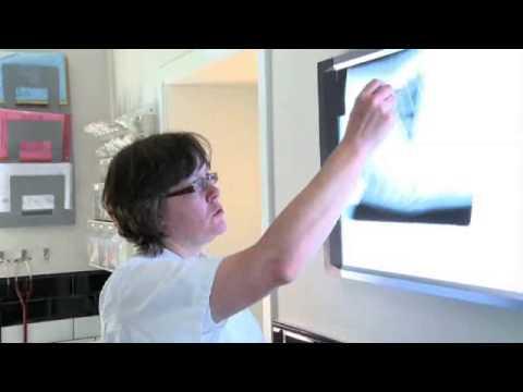 Radiografia toracica:parametri fuori norma (2/5)  Anomalie vascolari