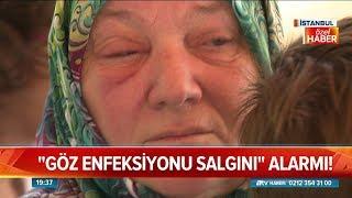 Göz enfeksiyonu salgınına dikkat - Atv Haber 3 Temmuz 2018