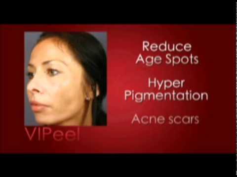 Chemical Peels, Silk Peel Dermalinfusion and Medical-Grade Facials