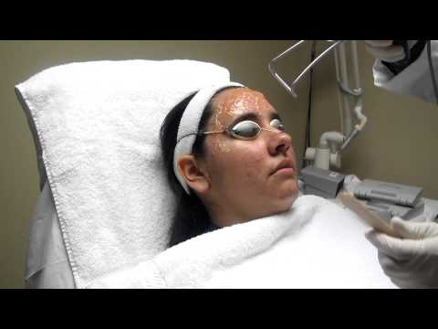 Acne Treatment With Fotona XpMax Laser-Los Angeles,Anaheim,Burbank,Pasadena
