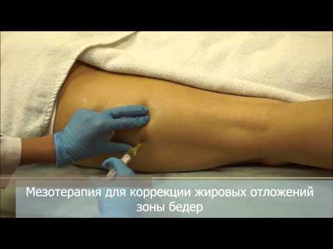 Мезотерапия тела или как похудеть быстро и эффективно