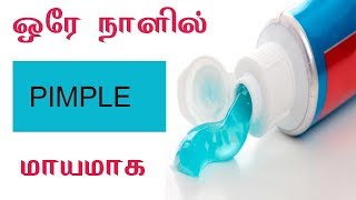 Remove Pimples | Beauty Tips In Tamil