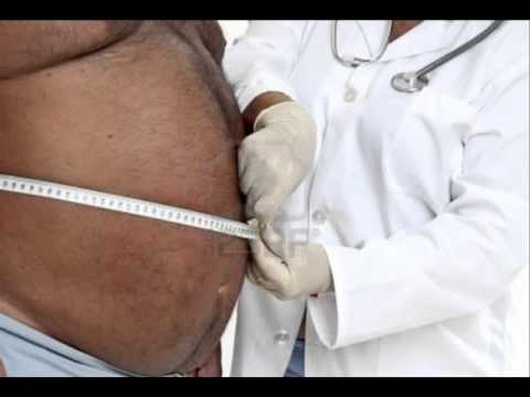 Obesity is a Physician Caused Disease, Dr Joel Wallach