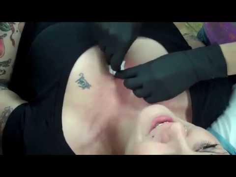 Microdermal dermal anchor on sternum chest cleavage for How soon can you get a tattoo removed