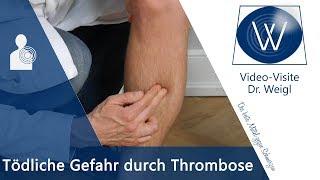 Die tödliche Gefahr durch Thrombose - Ursachen, Symptome & Tipps bei tiefer Beinvenenthrombose (TVT)
