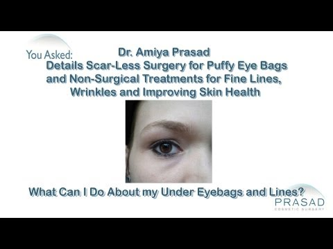 How to Treat Eye Bags and Wrinkles with a Combination Procedure