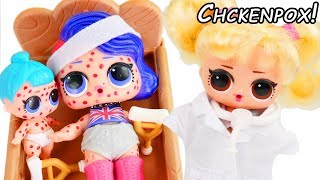 CHICKENPOX! LOL Surprise Doll Visits Sick Doctor in Bubbly Toy Video - Unboxed! Blind Bags