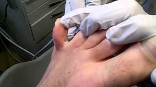 jeukende blaasjes tussen tenen