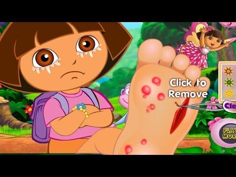 Dora games - Dora games for girls - Dora Foot Injuries  Free kids games