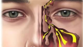 Sinüzit Ameliyatı Nasıl Yapılır ve Ameliyat Sonrası Nelere Dikkat Edilmelidir?