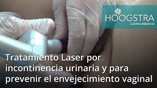 Tratamiento Laser por incontinencia urinaria y para prevenir el envejecimiento vaginal (17034)