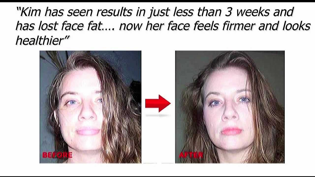Jaw Exercises to Reduce Double Chin Double Chin Exercises Define