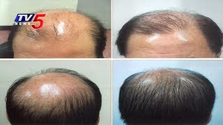 Surgical and Non-Surgical Hair Loss Treatments | ABC Clinic | Health File