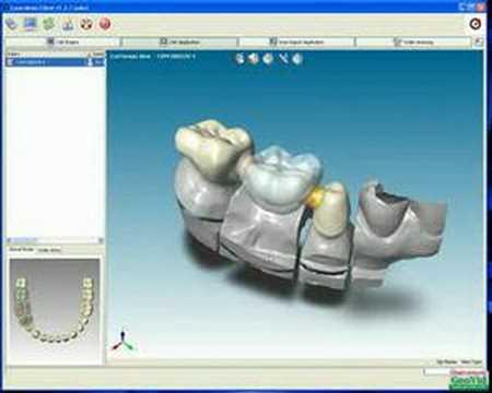 CAD dental ABIERTO (escaneo y diseño de cofias,coronas,etc)