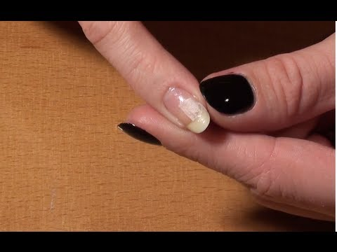 comment reparer ongle casse
