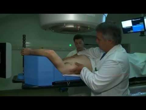La douleur après le thorax rend au dos