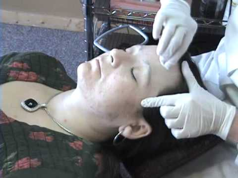 Skin Classic acne treatment w/ dermaplaning