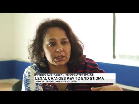 leprosy stigma community perception and health