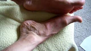 Arch stings in two spots for foot pain 2