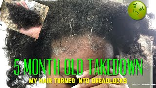 Nasty!! Taking Down My 5 MONTH Old Braids