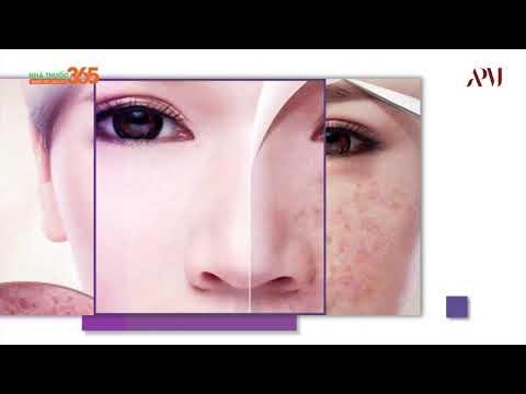 Apamas acnes serum – serum dưỡng da, đặc trị mụn