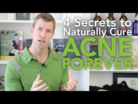 How to Cure Acne: 4 Secrets to Getting Rid of Acne Forever