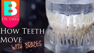 [BRACES EXPLAINED] How Teeth Move / Braces Work