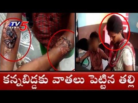 కన్నబిడ్డకు వాతలు పెట్టిన కసాయి తల్లి..! | Nellore District | TV5 News