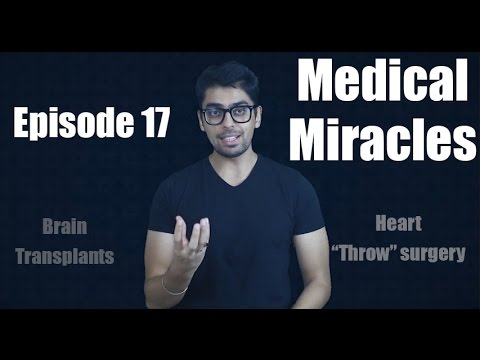 #hollyshit || Episode 17 || Wtf Medical Miracles video