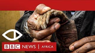 Malawi's Human Harvest - Full documentary - BBC Africa Eye