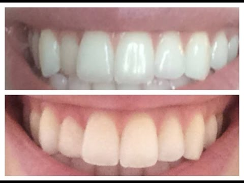 Fixing a crooked tooth inexpensively