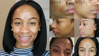 How I Remove Dark Spots & Acne Scars || Nighttime Skincare Routine