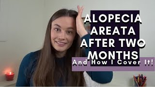 Alopecia Areata After Two Months and How I Cover It