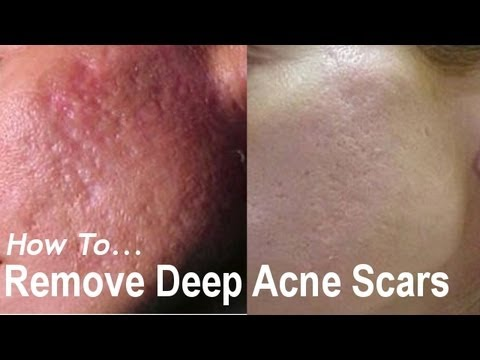 REMOVE DEEP ACNE SCARS? Acne Scarring Removal Treatments! AQA #1