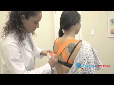 Fascial Taping for Posture