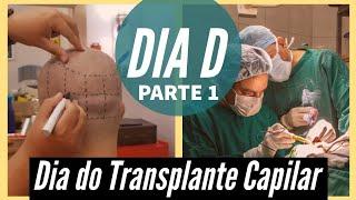 Veja a Cirurgia FUE - Passo a Passo Detalhado Transplante Capilar - Parte 1
