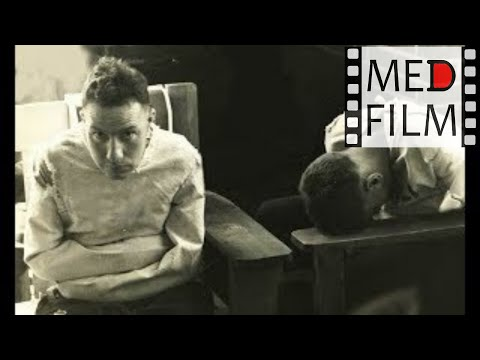 Фильм 1. Психические болезни (нозологические единицы) © Nosologic units in psychiatry