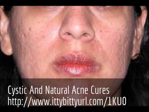 Cystic Acne Cures