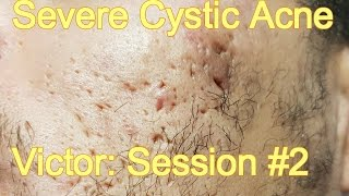 download lagu Severe Cystic Acne - Victor: Session #2 gratis