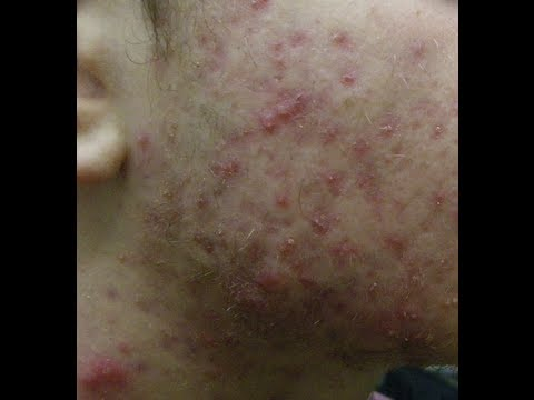 Severe Teenage Acne  (A Chronicle of Dr. Neal's Acne Bootcamp)