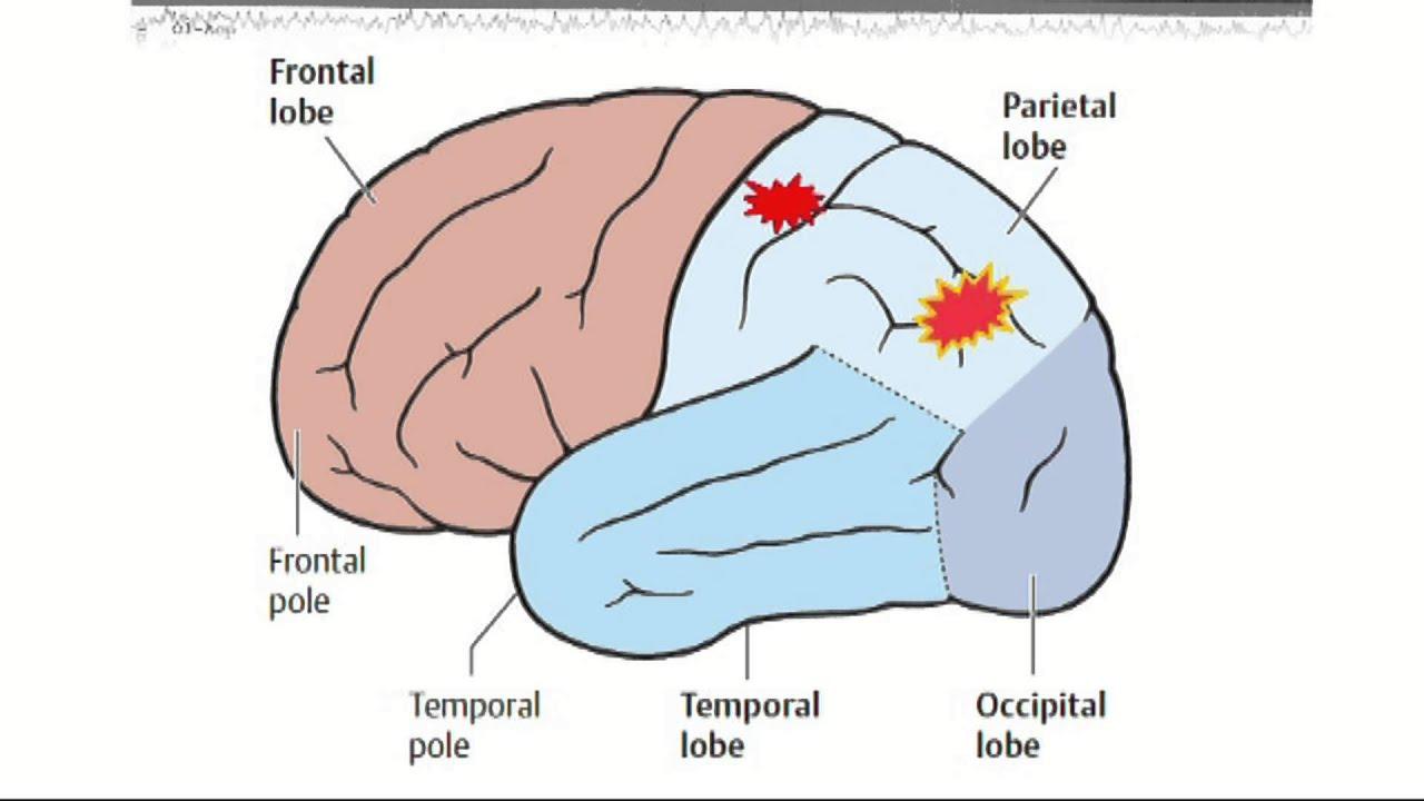 Эпилепсия фото