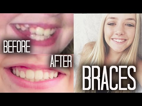 Braces 101 + Before & After!