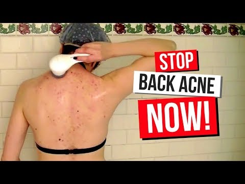 BACNE?! UGH! My Clear Back & Body Acne Treatment & Routine   How To Get Rid Of Acne!
