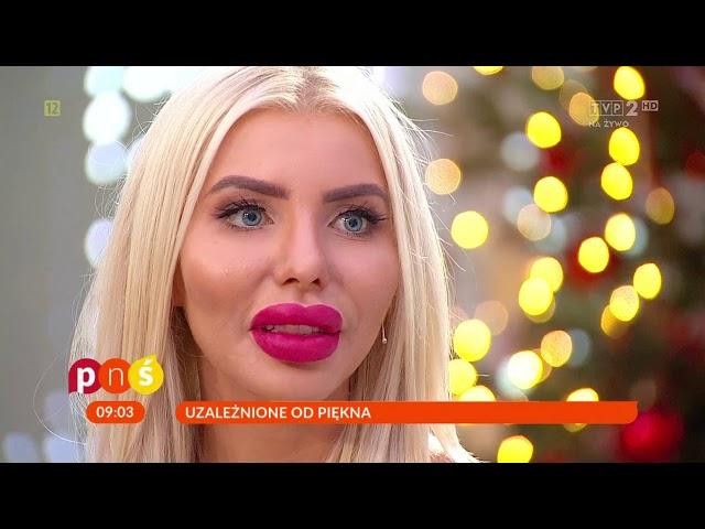 Polska Barbie o swoich operacjach – PnŚ