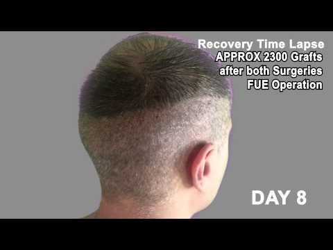 Hair Transplant Review 2013 19 DAY RECOVERY TIME LAPSE OF DONOR AREA POST OP