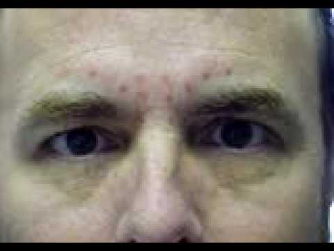 Dr. Richard Weiss Gets Botox Cosmetic - Before