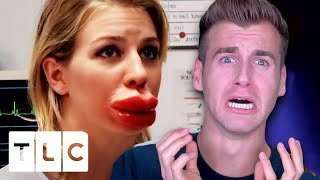 GIRL WANTS GIANT LIPS AND IT GOES HORRIBLY WRONG