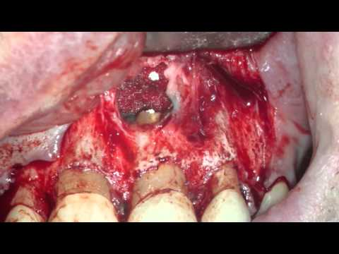 Anterior Periapical Surgery