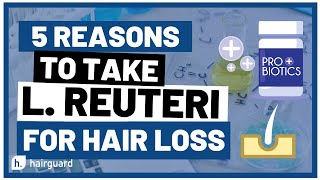 Top 5 Reasons To Take L REUTERI for HAIR LOSS